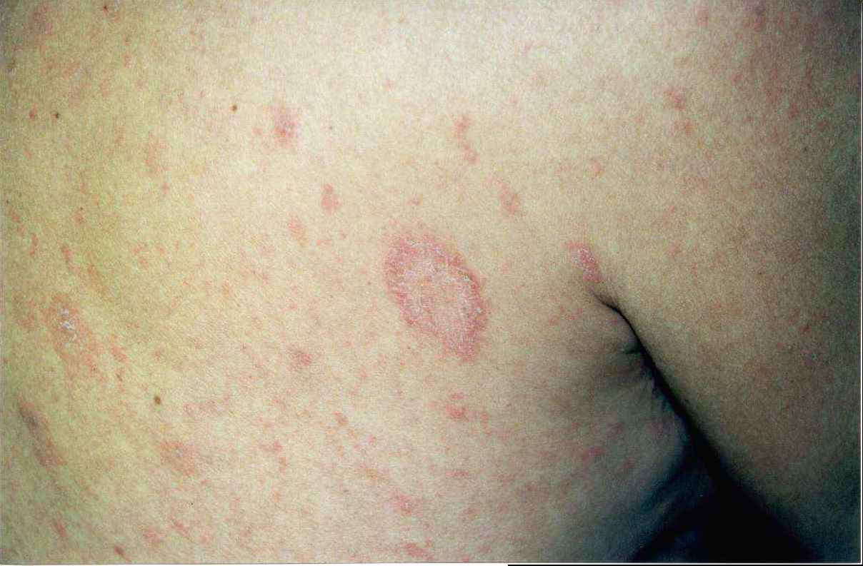What is pityriasis rosea? | Reference.com